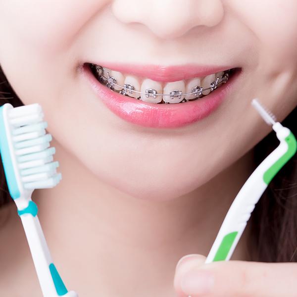 Se brosser les dents avec un appareil dentaire